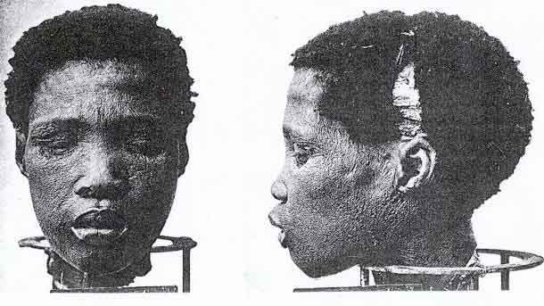 Severed Heads of Nama Prisoners - Complements of German ' race science' geneticist Eugen Fischer.